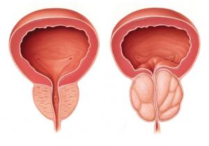 Urenol - รีวิว - pantip - พันทิป