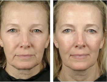 Beauty Bloom Skin - พันทิป - pantip - รีวิว